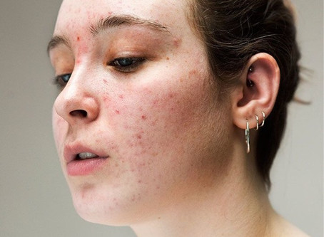 Can Fibroblasting clear Adult Acne and Acne Scarring?