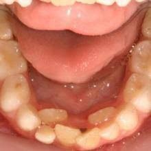 Has your child's adult tooth starting coming out but the baby tooth is still there?