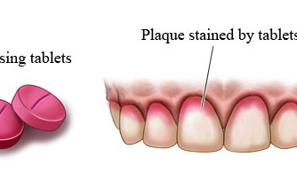 How to brush better with Plaque disclosing tablets!