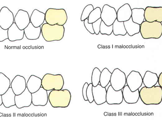 Do you know what occlusion class you have?