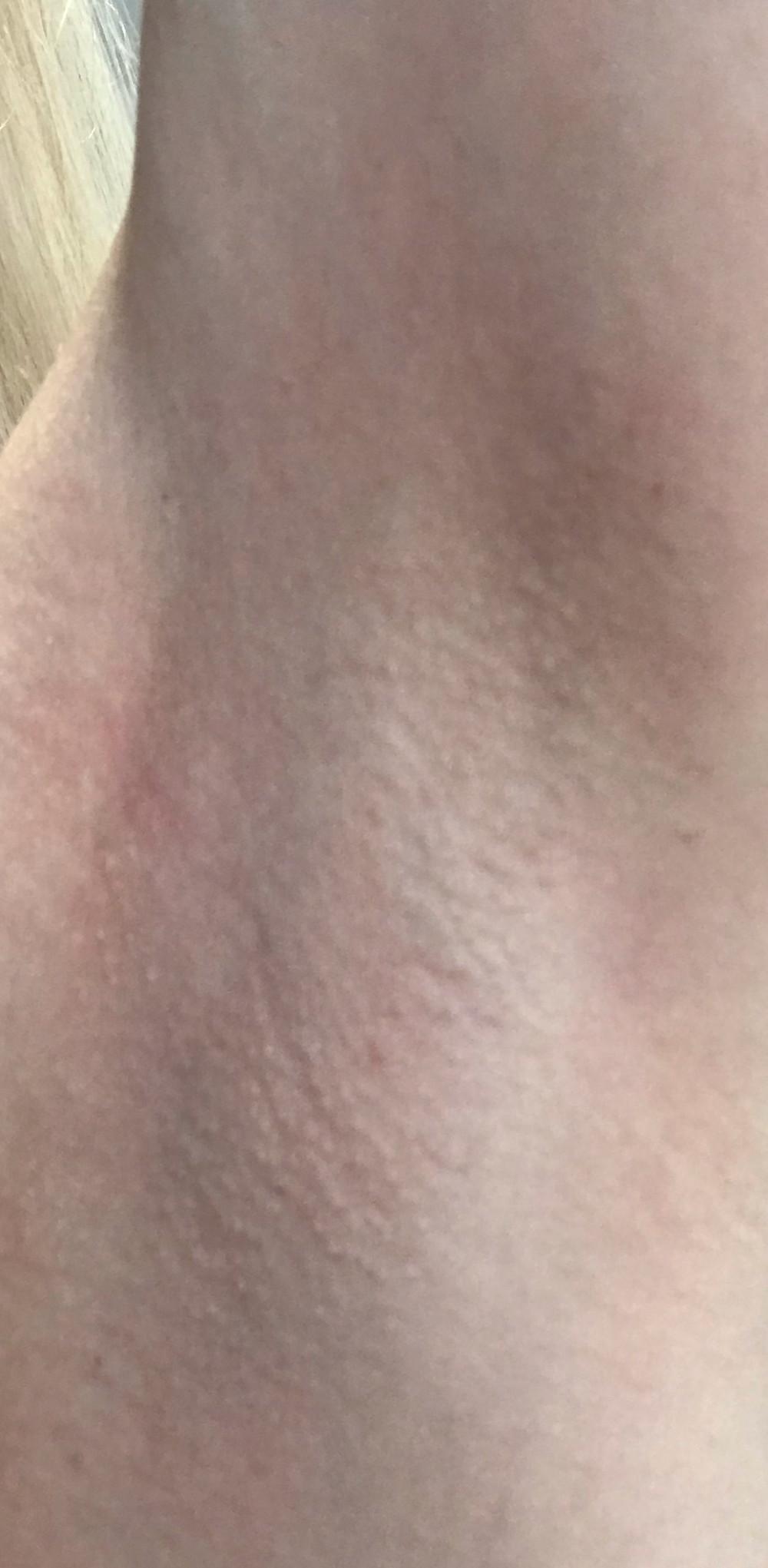 underarm waxing boreham