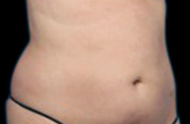 belly-after-01.jpg