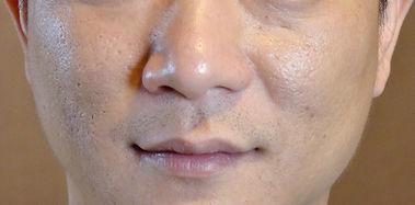 skin-after 01.jpg