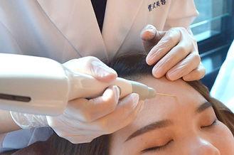 skin-step1 forehead.jpg