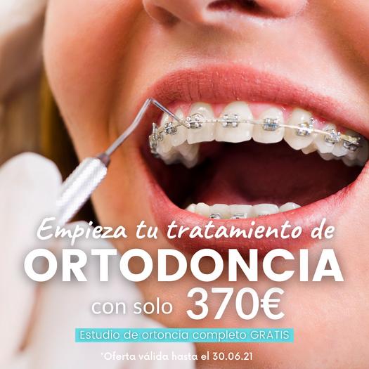 Ortodoncia metálica RB dental