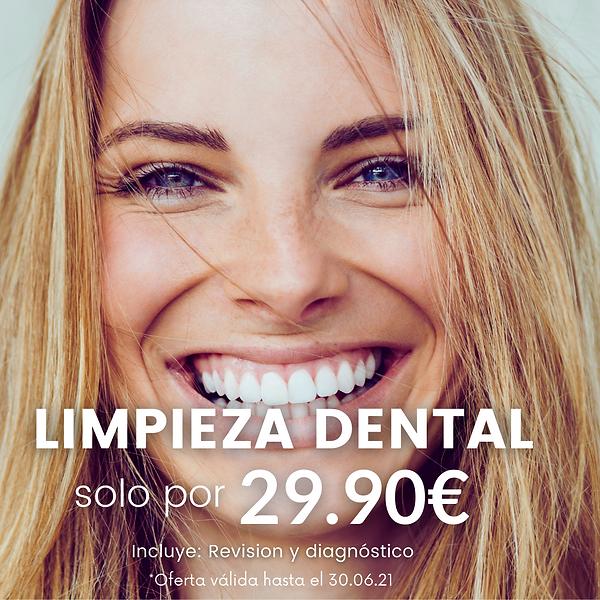 Limpieza dental RB dental