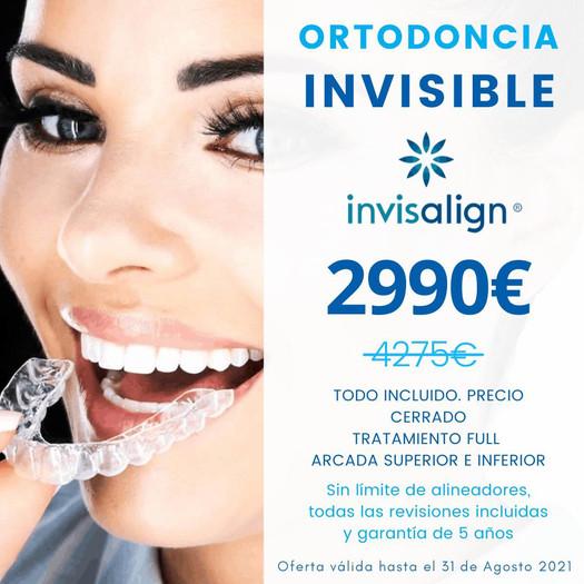 Invisalign RB dental
