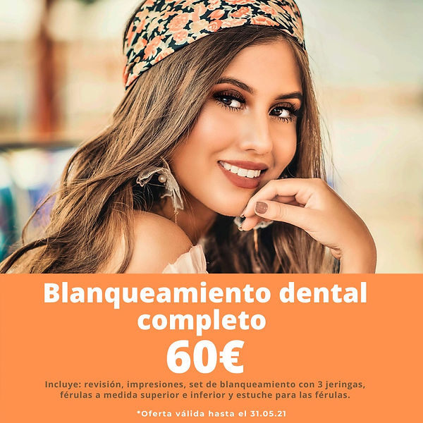 Blanqueamiento dental RB dental