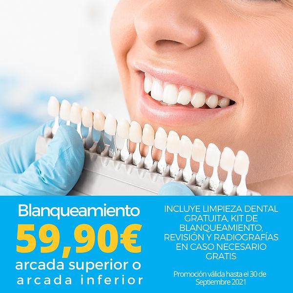 Blanqueamiento + Limpieza dental RB dental