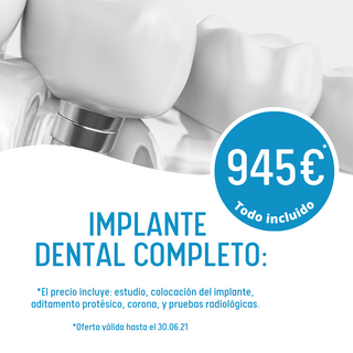Implante dental RB dental