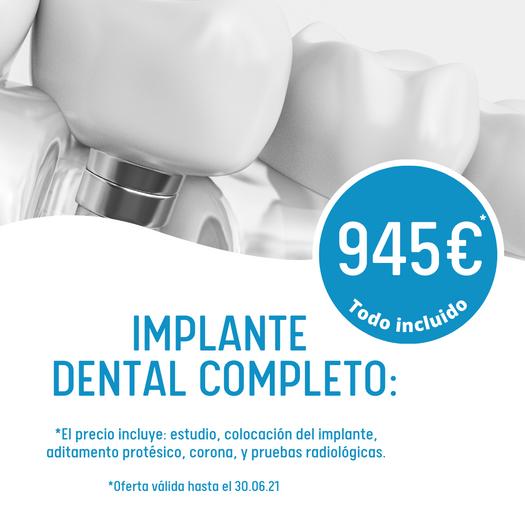 Implante RB dental