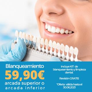 Blanqueamiento dental, limpieza gratis R
