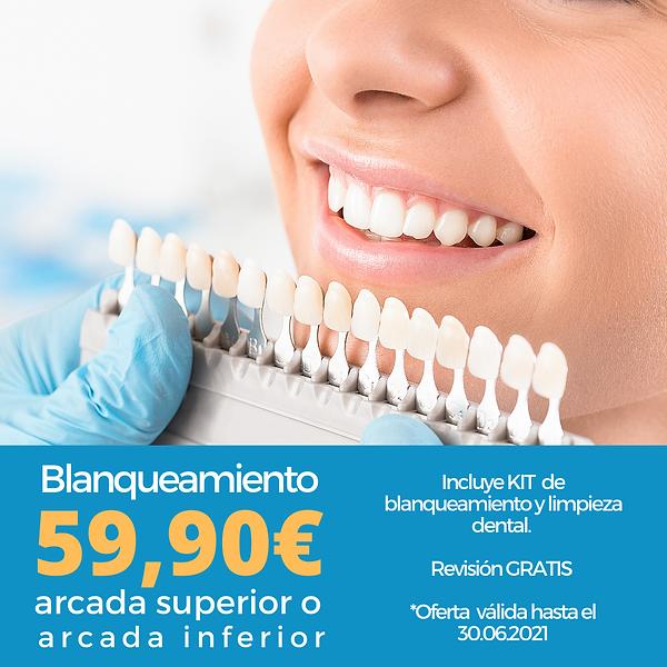 Blanqueamiento dental, limpieza gratis RB dental