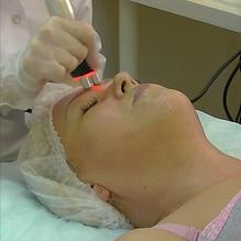 Термолифтинг RF-лифтинг кожи лица
