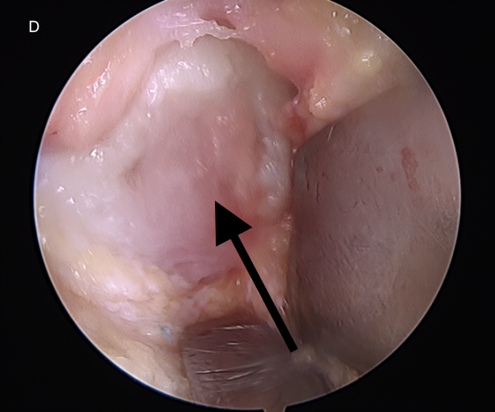 Cartilage Scaffold