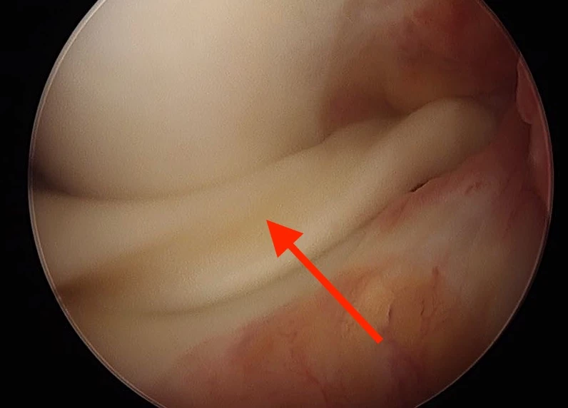 Displaced Bucket Handle Meniscus Tear