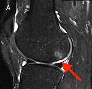 Cartilage MRI