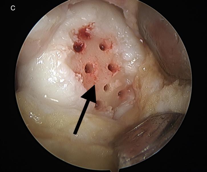 Cartilage Drilling