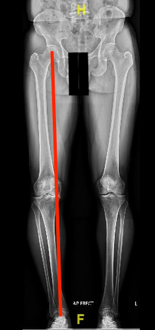 Medial Compartment Osteoarthritis