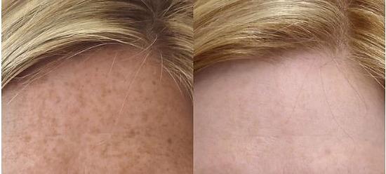 tratamento para manchas na pele - peeling quimico antes e depois