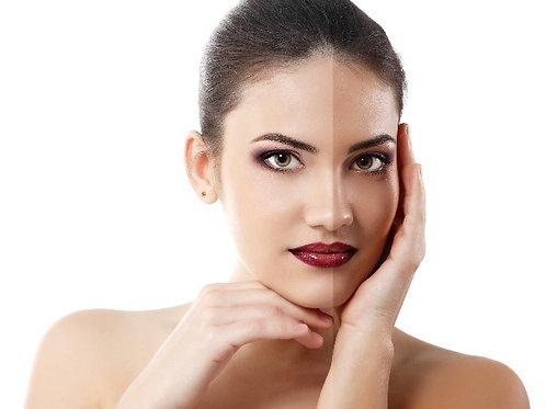 Peeling de Diamante - Facial Clareador