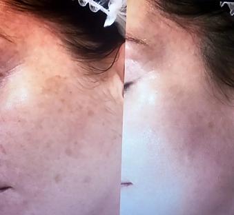 fotorejuvenescimento do rosto -  luz pulsada