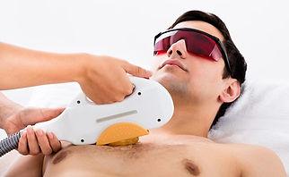 depilação torax masculino - luz pulsada.