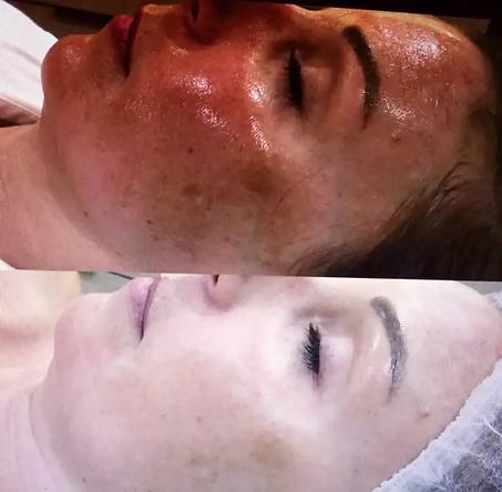 rejuvenescimento do rosto com luz pulsada