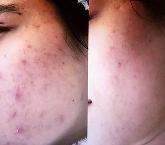 fotorejuvenescimento pele acneica