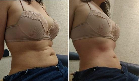 fatslim abdominal antes e depois