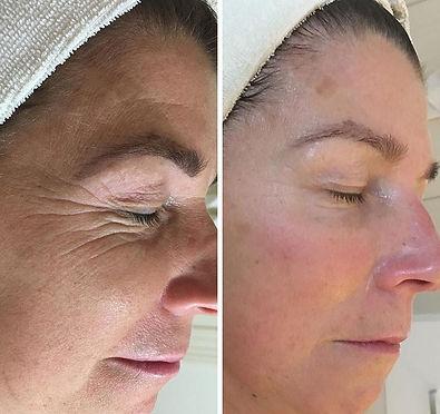 criofrequencia facial