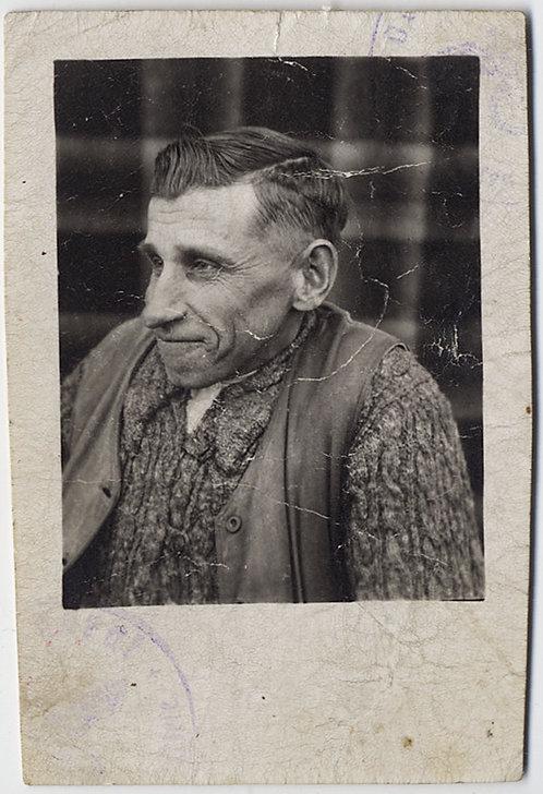 SYMPATHETIC PORTRAIT MAN with SPINAL DEFORMITY? PLAID BLANKET BACKDROP