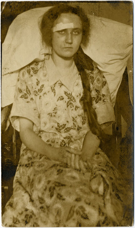 fp0668 (woman w bandage)