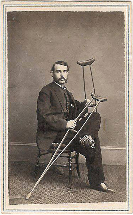 fpUncat(Man-Crutches-CDV)