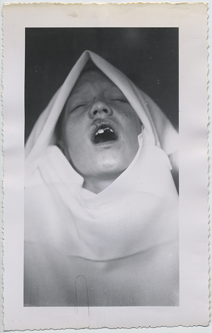 fp6355(Child_Dentist_MouthTrauma_BrokenTooth)