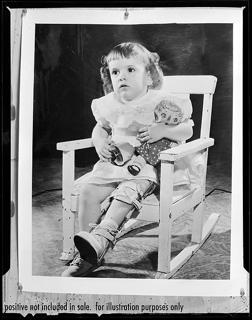 PRESS NEGATIVE WEIRD UNUSUAL PHOTO PHOTO PINNED 2 WOODEN BOARD INJURED GIRL DOLL