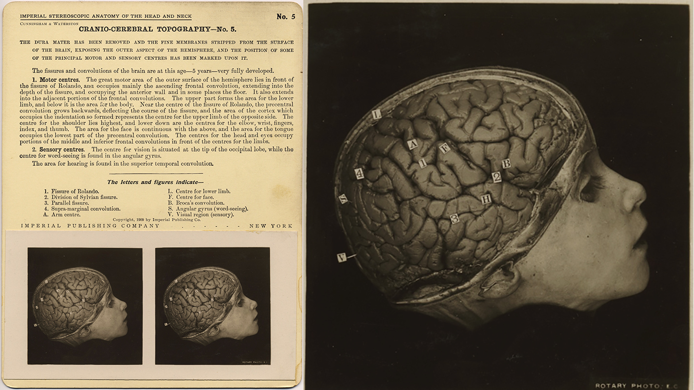 fp8447(SV-Cranio-Cerebral-Topography5-Gp)