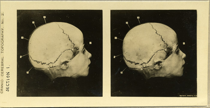 fp-uncat.skull