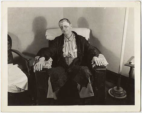 WOUNDED DAMAGED BANDAGED BATTERED MAN on EASY CHAIR in PAJAMAS CROCHETED COVERS
