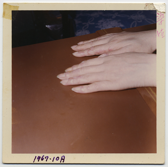 fp4432(Hands_Blisters)