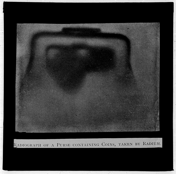 fp3256(LS_RadiographPurseContainingCoins)