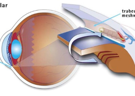Promising New Ways to Halt Glaucoma Now Available