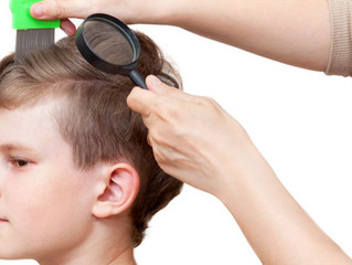 5 More Signs of Head Lice