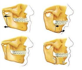 jaw_surgery_bottom1.jpg