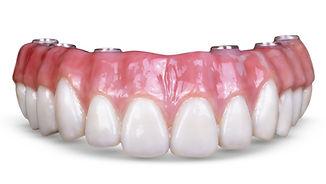 im0702-trends-implant-dentistry-01.jpg