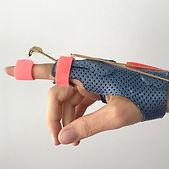 dynamic finger splint.jpg