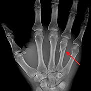 Neck_Fracture_of_the_Fourth_Metacarpal_B