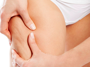 7 Tips to Naturally Reduce Cellulite
