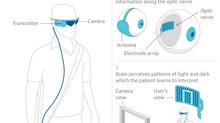 Ten People To Get NHS Bionic Eyes