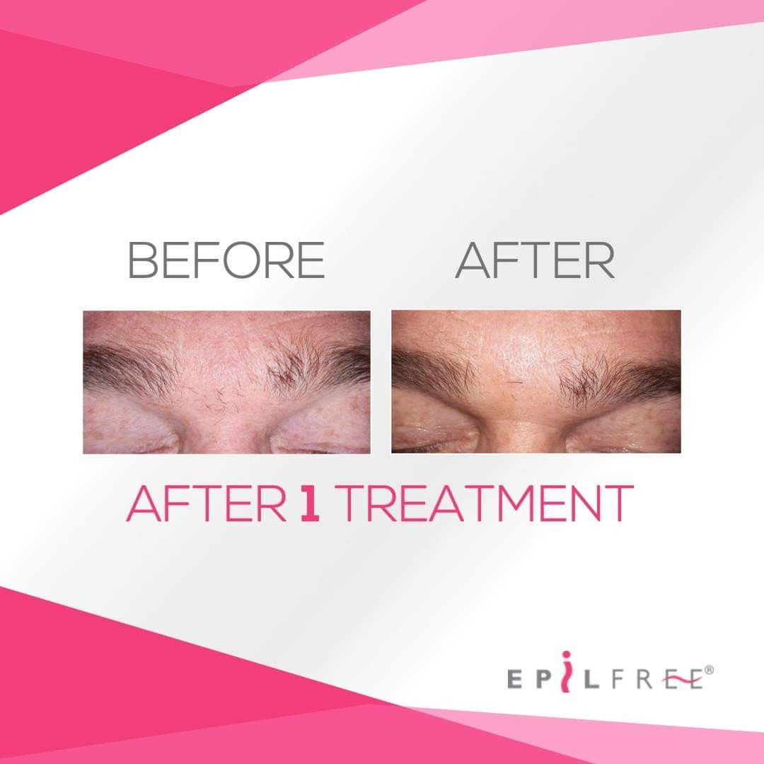 Epilfree before and after 6.jpg